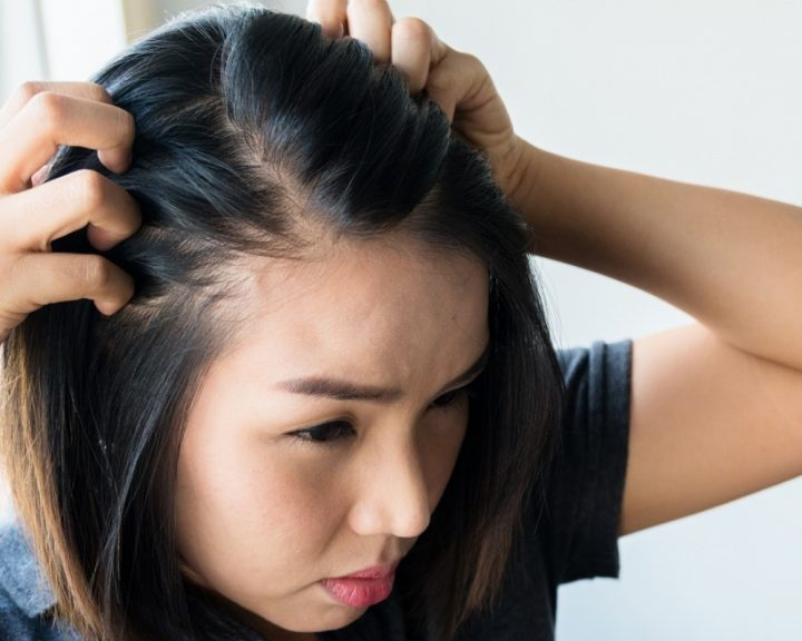 Hair regrowth hong kong