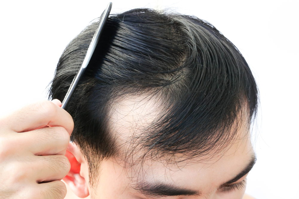 Tips To Follow To Get The Best Hair Growth Product